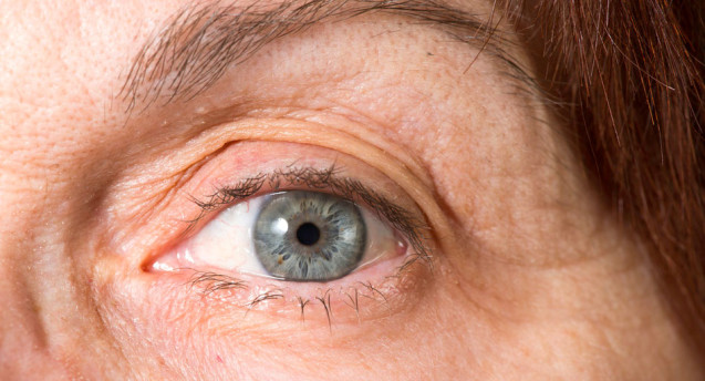 Surprising Early Signs of Glaucoma
